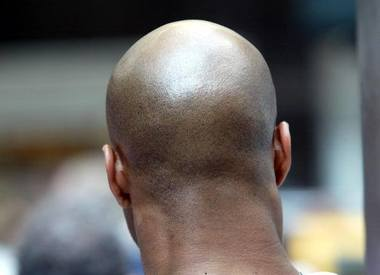 Caffeine Cures Baldness, What?!?!